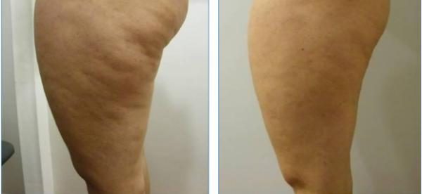 Melhor Tratamento para Celulite (Drenagem Linfática)