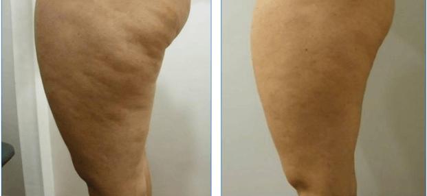 celulite antes e depois da drenagem linfática
