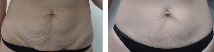 Fisioterapia para acabar com a flacidez na barriga