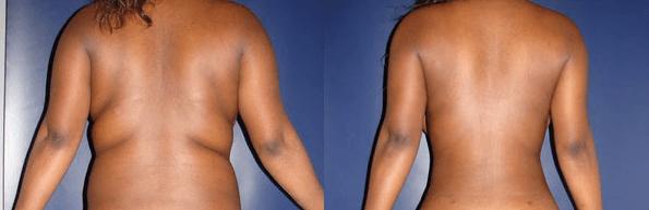 foto de Lipoaspiração Tumescente antes e depois  4