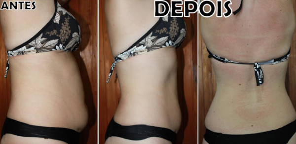 lipoescultura gessada em fotos antes e depois