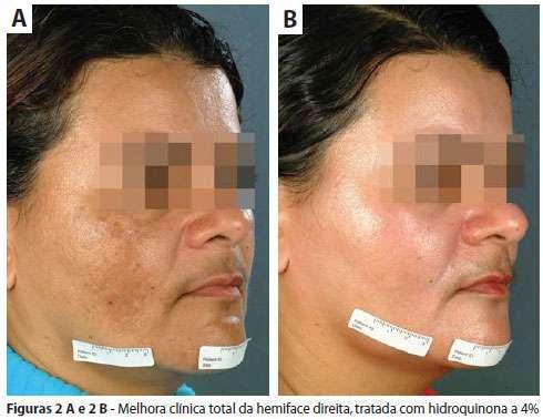 manchas tratadas com hidroquinona antes e depois