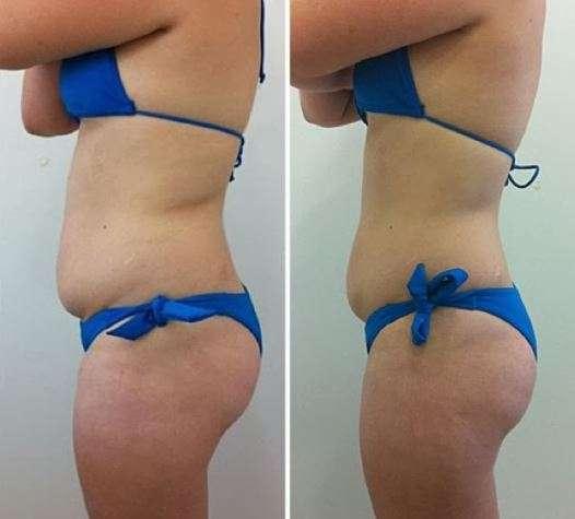 Lipocavitação antes e depois 2