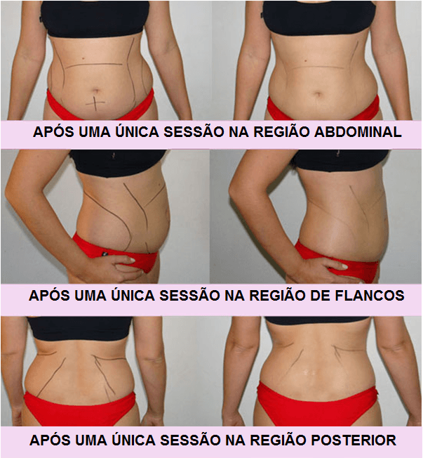 Acabe com a gordura localizada sem cirurgia