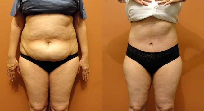 abdominoplastia antes e depois 3