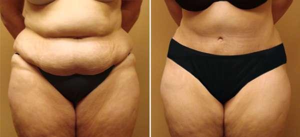 abdominoplastia antes e depois 4