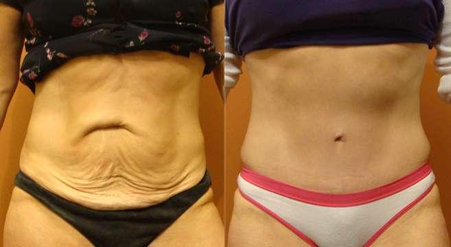 abdominoplastia antes e depois 5