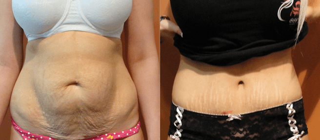 abdominoplastia antes e depois 6