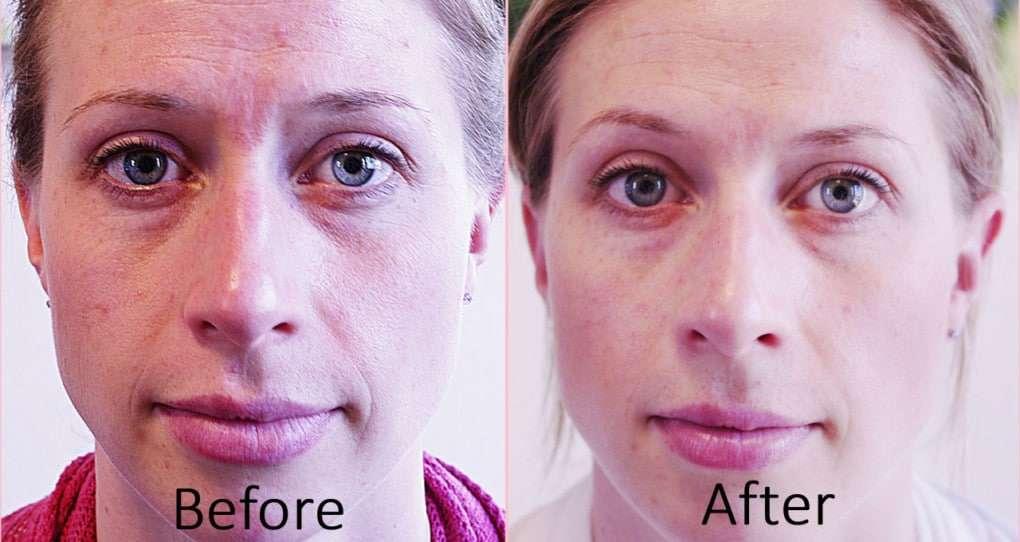 acupuntura facial antes e depois