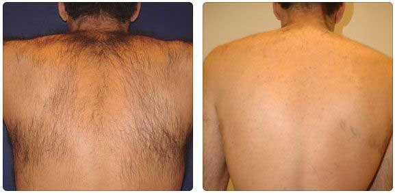 costas antes e depois