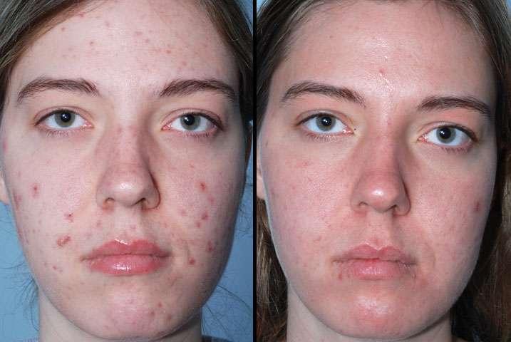 foto de paciente com acne antes e depois