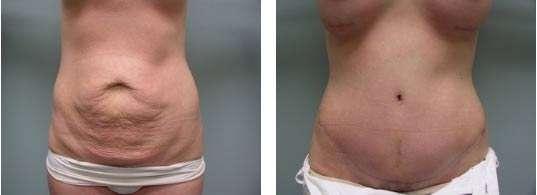 fotos da abdominoplastia 10