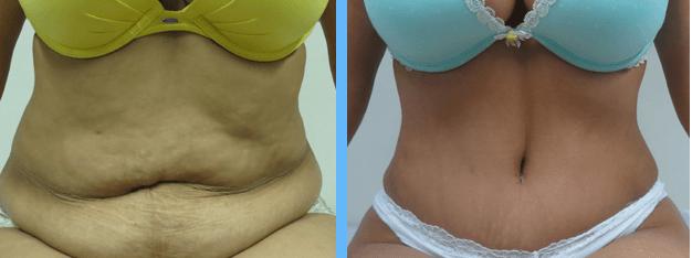 Complicações da abdominoplastia