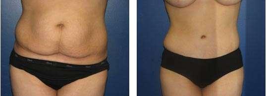 fotos da abdominoplastia 4