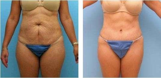 fotos da abdominoplastia 5