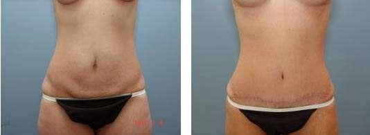 fotos da abdominoplastia 9