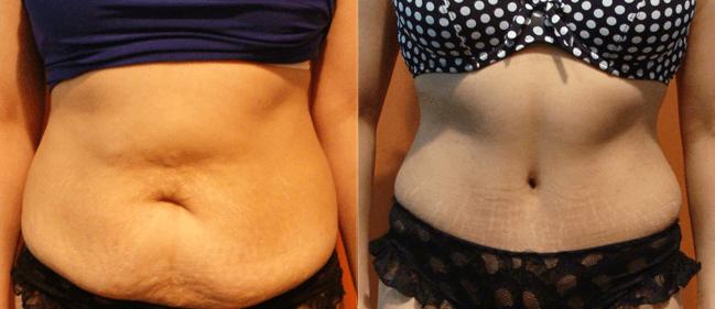 Abdominoplastia com Lipo: Antes e Depois