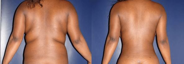 lipoescultura antes e depois 12