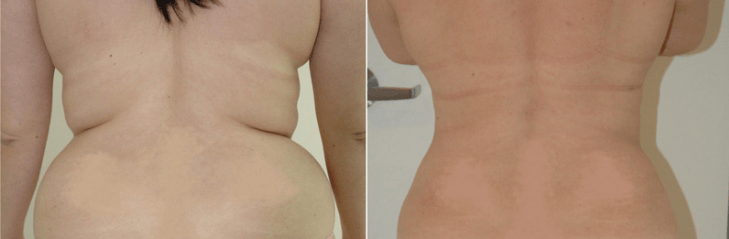 lipoescultura antes e depois 5