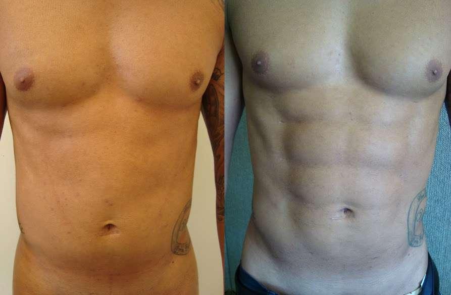 lipoescultura antes e depois 6