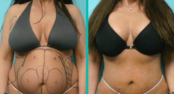 lipoescultura antes e depois 9