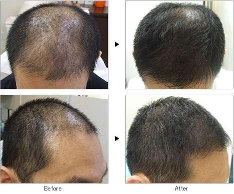 mesoterapia antes e depois 12