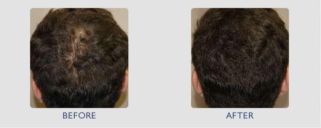 mesoterapia antes e depois 15