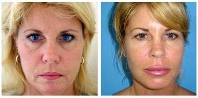 mesoterapia antes e depois 4