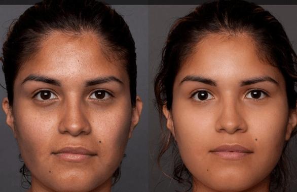 mesoterapia antes e depois 8