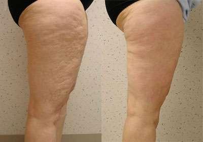 mesoterapia antes e depois 9
