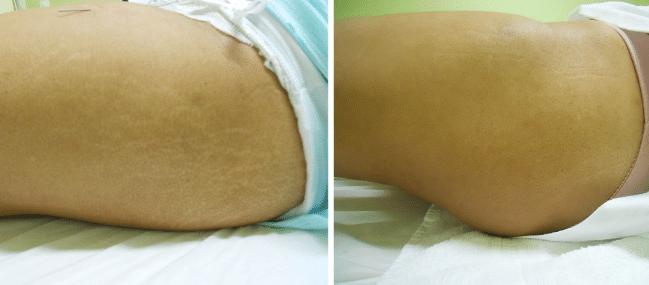 10 Tratamentos Estéticos para Estrias