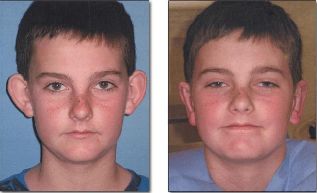 otoplastia antes e depois 2