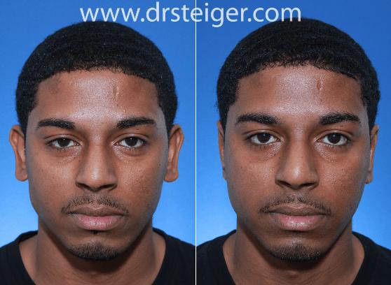 otoplastia antes e depois 3