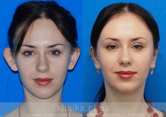 Otoplastia: cirurgia plástica para corrigir orelhas de abano