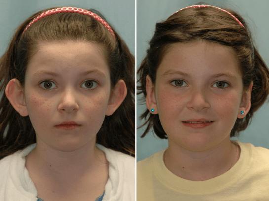 otoplastia antes e depois 5