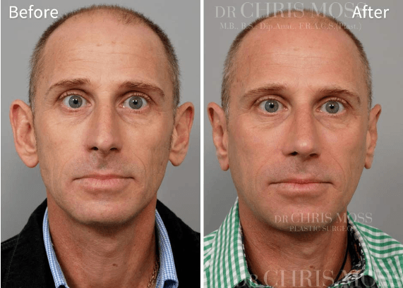 otoplastia antes e depois 6