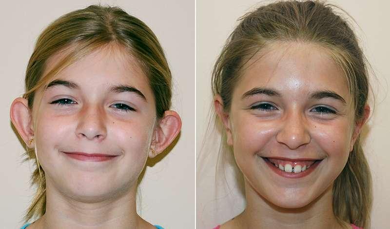 otoplastia antes e depois