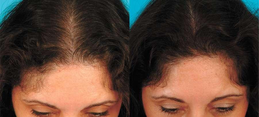 Queda de cabelo na menopausa é normal, mas pode ser evitada