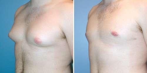 Ginecomastia (crescimento de mamas em homens)