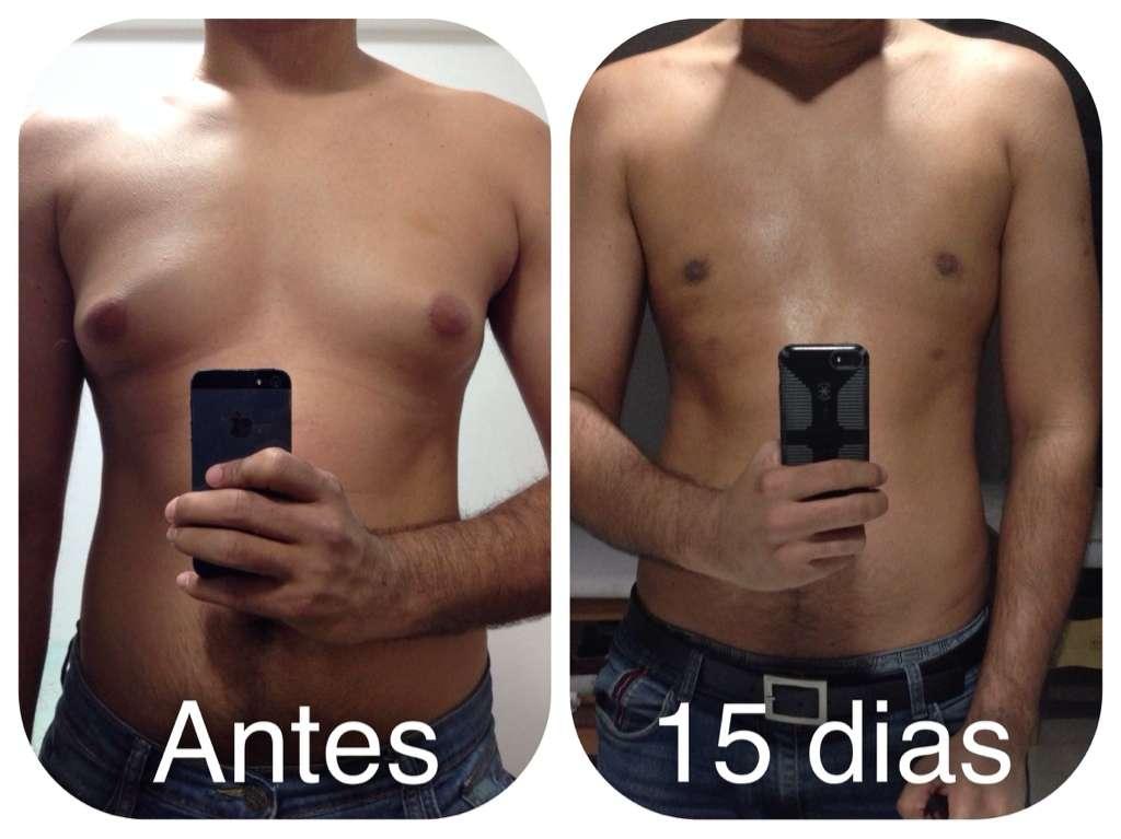 ginecomastia antes e depois 4