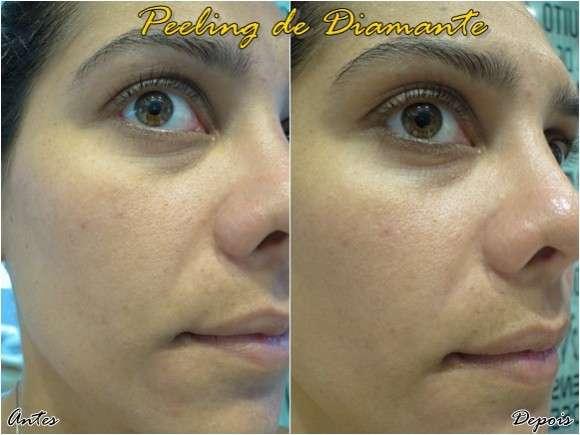 peeling de diamante antes e depois