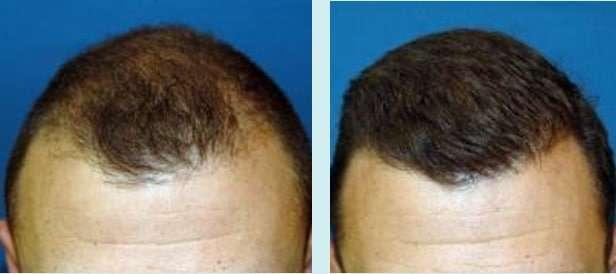 Carboxiterapia antes e depois da Regeneração Capilar