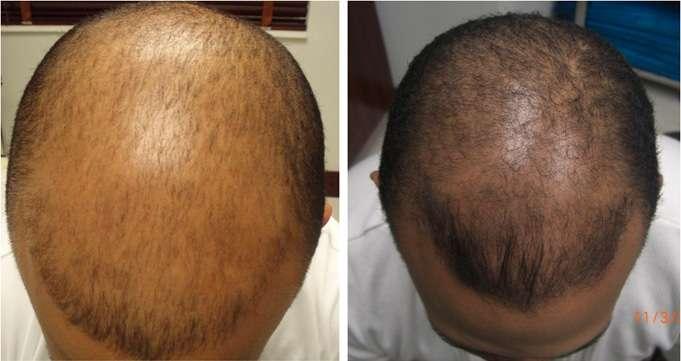 Carboxiterapia na alopecia antes e depois