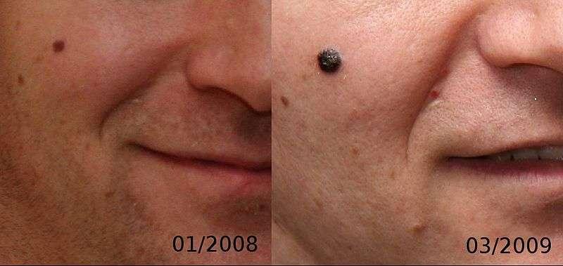 Antes e Depois: Esta imagem demostra a evolução de um Melanoma nodular de 4 milímetros ao longo de 14 meses.