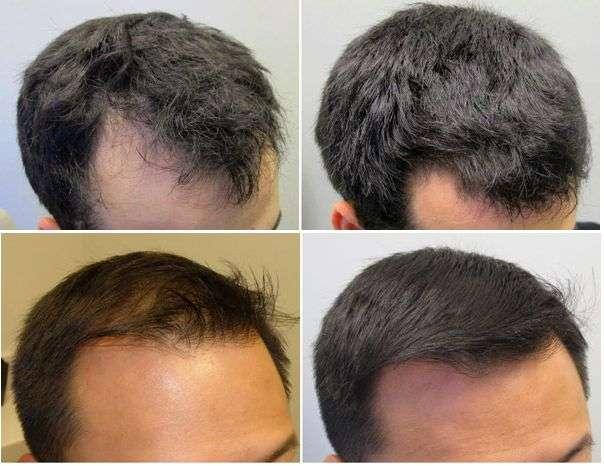 Remédios para queda de cabelo