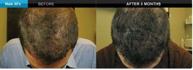 Resultados 3 meses depois, bioestimulação, laser frio e carboxiterapia