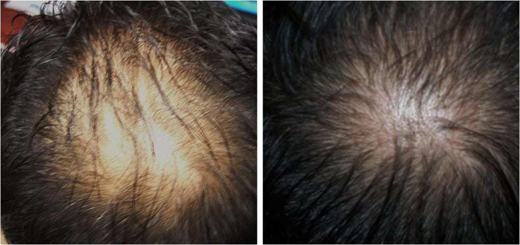 alopecia antes e depois