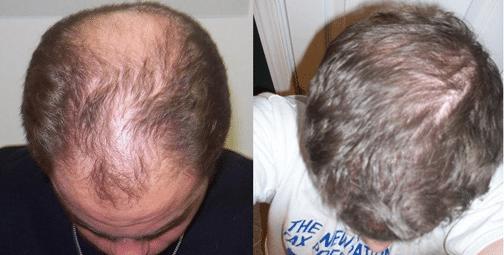 calvicie antes e depois