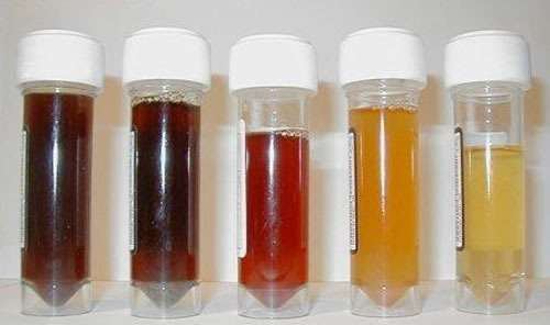 hematúria - urina com sangue