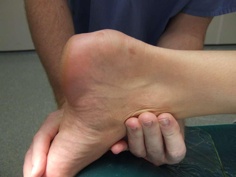 Bursite posterior do tendão de Aquiles